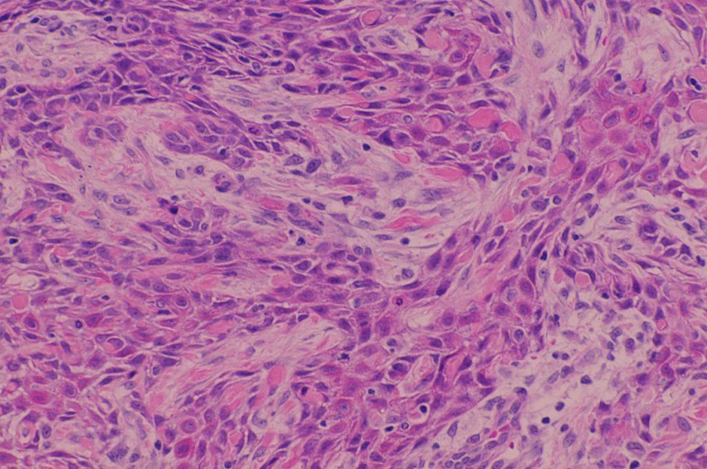 cancer-colon-3